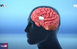 Phẫu thuật não để cai nghiện ma túy
