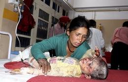 Gia tăng số người thiệt mạng trong vụ tai nạn giao thông tại Ấn Độ