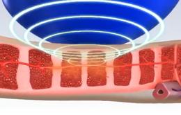 Việt Nam ứng dụng phương pháp mới vào điều trị rối loạn cương dương