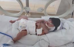 Tìm người thân của bé sinh non tháng bị bỏ lại bệnh viện