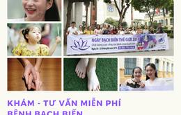 Khám, tư vấn miễn phí bệnh bạch biến tại Hà Nội