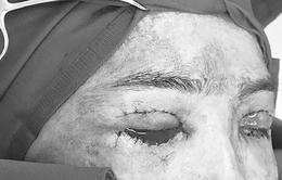 Máu chảy suốt 14 tiếng sau phẫu thuật cắt da thừa mi mắt ở thẩm mỹ tư nhân