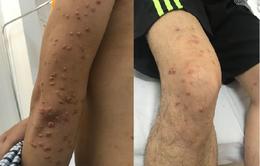 Người đàn ông trẻ vào viện với làn da nổi đầy u cục