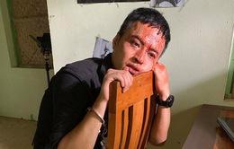 """Hồng Đăng đầm đìa máu trong cảnh quay đóng máy """"Mê cung"""""""