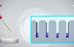 Ứng dụng công nghệ in 3D trong điều trị hói đầu