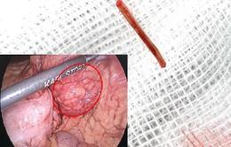 Tưởng đau bụng do rối loạn tiêu hóa, vào viện phát hiện xương cá đâm thủng ruột