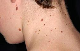 Dấu hiệu của bệnh ung thư da