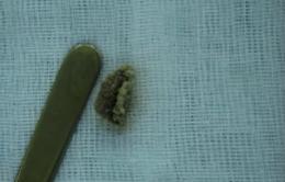 Ngỡ ngàng mảnh bông gòn gây viêm nhiễm trong âm đạo bé gái 4 tuổi
