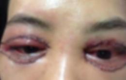 Nhấn mí, cắt mí, bóc mỡ bọng mắt…bị hỏng, phải làm sao?