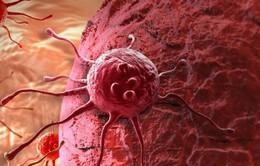 """Phát hiện """"điểm yếu"""" của tế bào ung thư"""