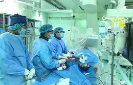 Kỹ thuật mới trong can thiệp động mạch vành