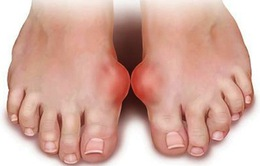 Chế độ ăn uống để điều trị bệnh Gout
