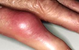 Làm thế nào để sống chung với bệnh gout?