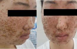 Khuôn mặt phủ kín vảy sau khi dùng sữa rửa mặt mua qua mạng