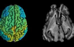 Kỹ thuật MRI mới giúp sớm phát hiện các căn bệnh thoái hóa thần kinh