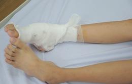 Cứu bé gái 14 tuổi mang căn bệnh hiếm gặp ở bàn chân