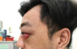 Cứu người đàn ông thoát nguy cơ mù mắt sau chấn thương sọ não