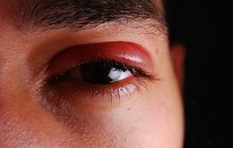 Những biểu hiện ở mắt khi mắc bệnh zona