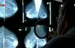 Thụy Sỹ xây dựng bản đồ bệnh ung thư vú