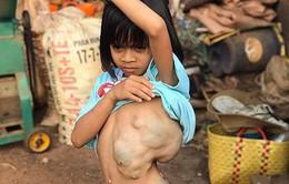 Giải thoát khối bướu 4kg đeo bám trên lưng bé gái suốt 8 năm