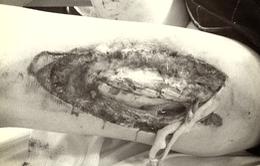 Nữ cổ động viên bị bắn pháo trên SVĐ Hàng Đẫy: vết thương đùi phức tạp