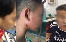 Phát hiện thêm 3 trẻ mắc bệnh Whitmore tại Nghệ An