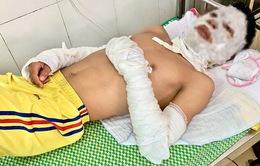 Nổ chùm bóng bay, 4 người bị bỏng nhập viện