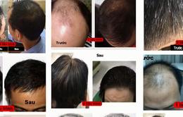 Có chăng công dụng thần kỳ của thuốc chữa hói đầu, rụng tóc?