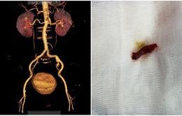 Hoại tử 3m ruột vì tắc động mạch treo