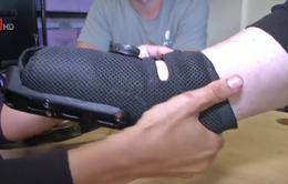 Chế tạo cánh tay giả đa công cụ tùy chỉnh