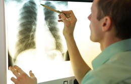 Trục trặc đồng hồ sinh học gây xơ phổi