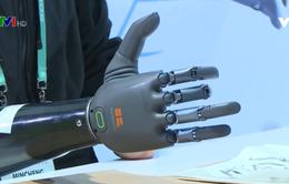 Bàn tay giả điều khiển bằng trí tuệ nhân tạo