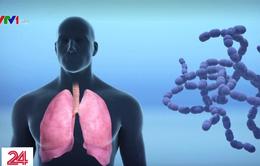 WHO: Virus viêm phổi cấp sẽ còn lan rộng