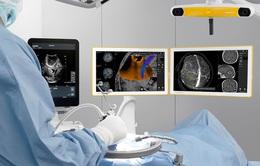 Lần đầu tiên tại Việt Nam: Áp dụng kỹ thuật siêu âm định vị trong phẫu thuật u não