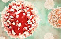 Tìm ra phương pháp ngăn chặn giai đoạn nguy hiểm chết người của bệnh ung thư