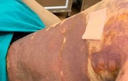 Bác sĩ Viện Bỏng quốc gia nói về vụ tai biến hút mỡ tại Thẩm mỹ viện Việt Hàn
