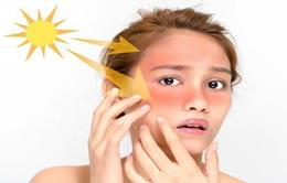 10 thói quen giúp tăng cường miễn dịch giữa mùa dịch corona