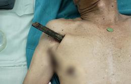 Ngã khi đi xe đạp, cụ ông bị cọc gỗ đâm xuyên ngực