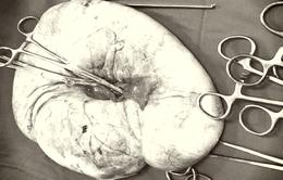 Cắt khối u nang buồng trứng gần 6kg