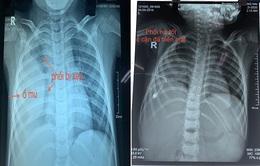 Hai bệnh viện nhi phối hợp cứu bé 5 tuổi tràn mủ, dính màng phổi phức tạp