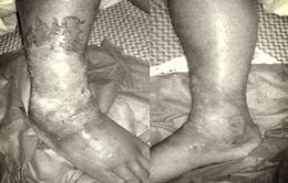 Mắc đái tháo đường nhưng không biết, một người có nguy cơ phải cắt cụt chân do biến chứng