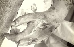 Chữa rắn độc cắn bằng thuốc nam, nam thanh niên bị hoại tử bàn tay
