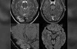 Đau đầu liên miên, phát hiện ấu trùng sán dây làm tổ trong não