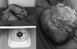 Loại bỏ khối u nặng 4kg trong ổ phúc mạc bụng