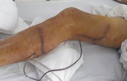 Kịp thời giữ lại chân cho nam bệnh nhân bị cưa máy cắt