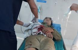 Thêm ca cấp cứu bị máy cưa gỗ cắt vào tay, bác sĩ cảnh báo cẩn trọng với tai nạn lao động