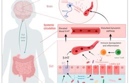 Vi khuẩn đường ruột có liên quan đến bệnh tự kỷ