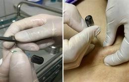 Phương pháp cấy chỉ catgut và ứng dụng điều trị bệnh