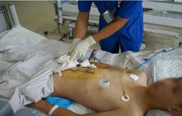 Cứu nam bệnh nhân sốc mất máu, vỡ gan phức tạp do tai nạn giao thông