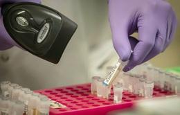 Pháp có ca bệnh đầu tiên tái nhiễm biến chủng mới